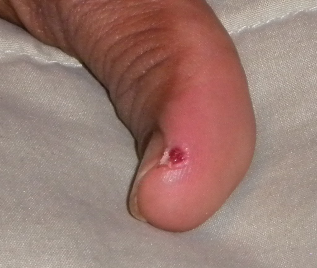 Wounded thumb on diabetic derma neem serum two