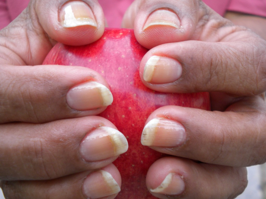 Long, strong, supple nails with Derma Neem Nails